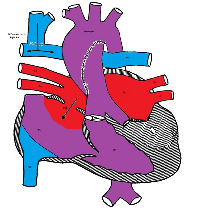 Cyanotic Cardiac Lesions