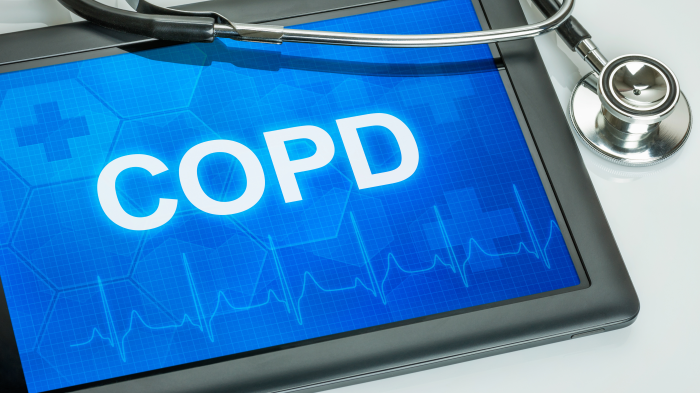 COPD readmissions reduction program decreases 30-day hospital readmission, may increase mortality