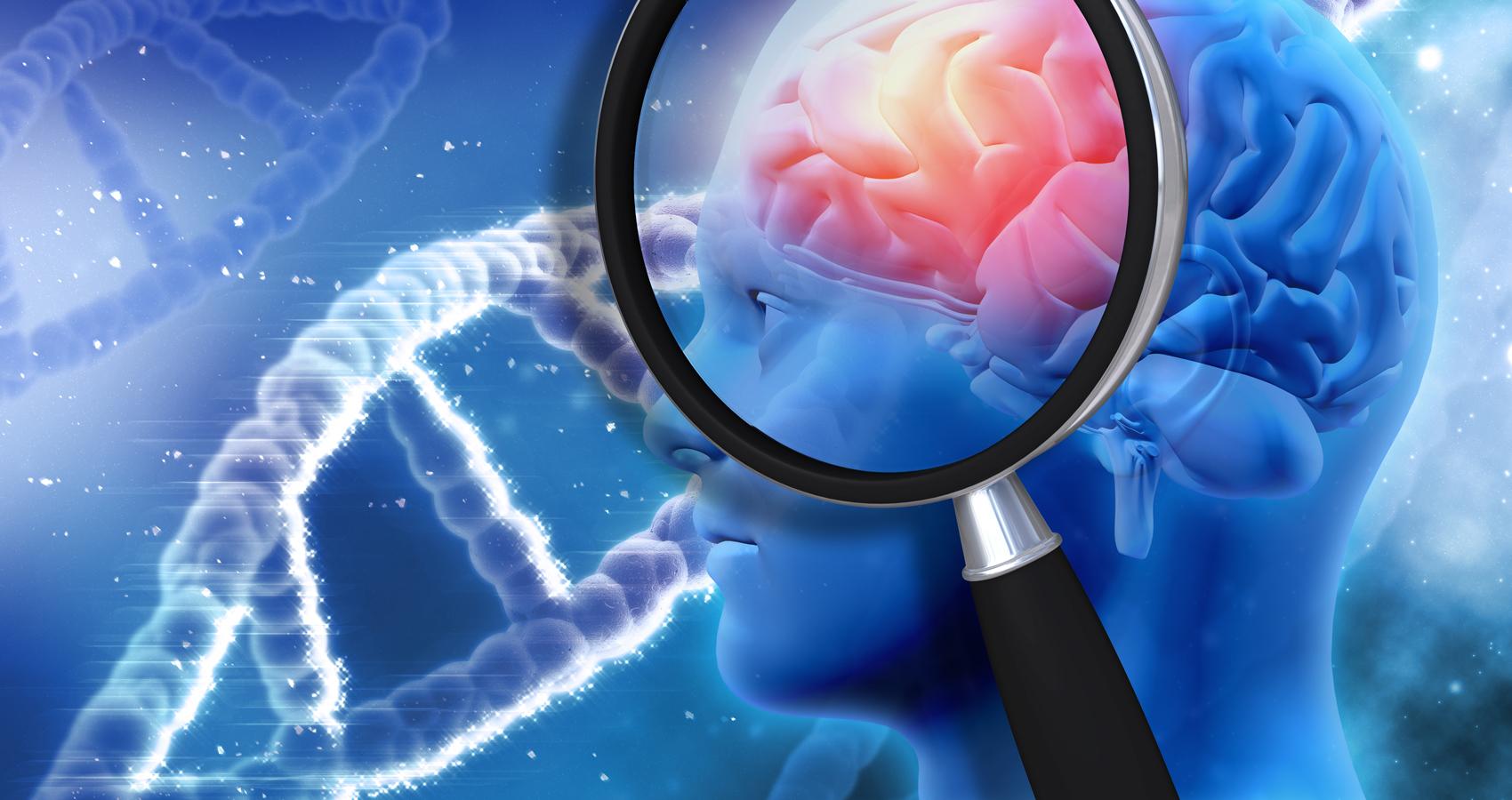 Immunotherapy Alzheimer