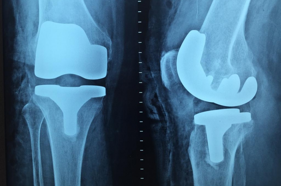 Opioid-prescriptions-after-knee-hip-replacement-on-rise-study-finds