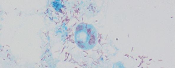 R conorii conorii Vero cells