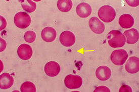 Platelets from Tulane