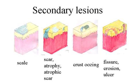Secondary lesions